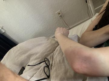 my bruised arm